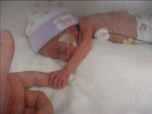 Premature baby Danae 2...