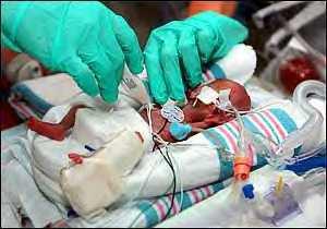 Premature baby Danae...